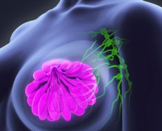 Alternative Healing For Cancer - On-Going Checkups