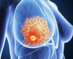 Breast Cancer Survival Rates - Dare To Know Your Chances