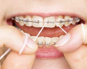 Dental Crown - Know Every Aspect of The Treatment